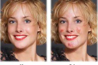 Remover espinhas e marcas das fotos - Editar fotografias esconder acne